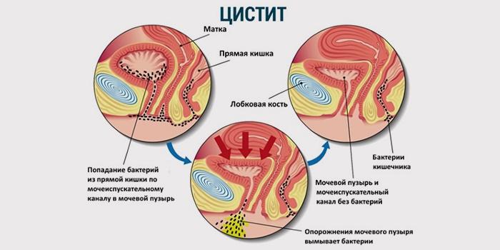 Болит уретра после родов — Про Маму